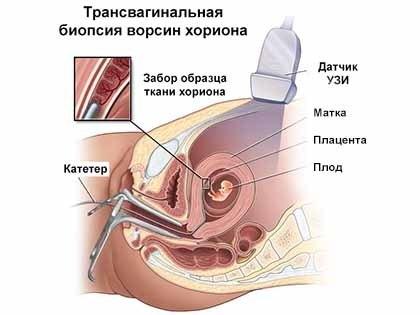 sindrom-dauna-6