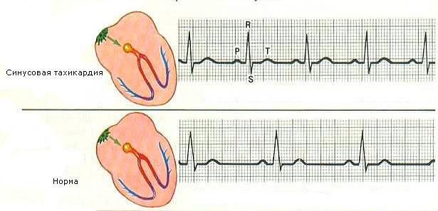 sinusovaja-tahikardija