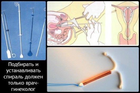 Последствия беременности на спирали