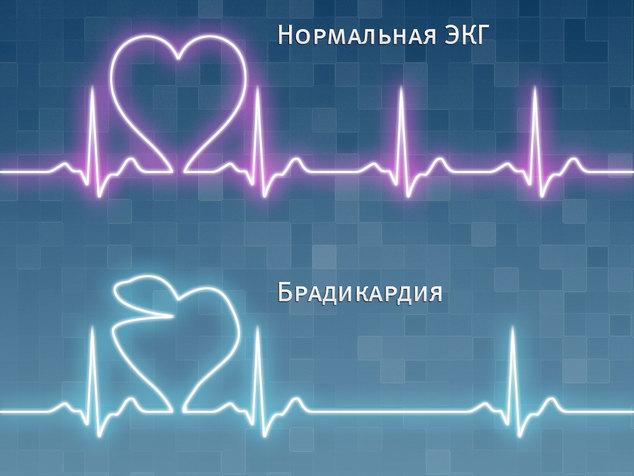 1438409428_bradikardiya