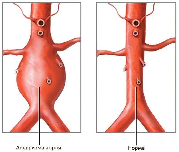 anevrizma-aortyi-bryushnoy-polosti_405