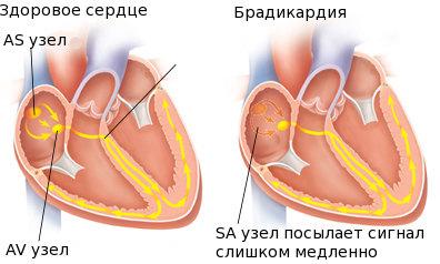 bradikardiya_12