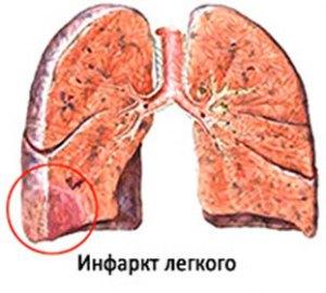 gemorragicheskij-infarkt-legkogo-simptomy-prichiny-lechenie-i-posledstviya