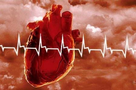 infarct_miocard-449x299