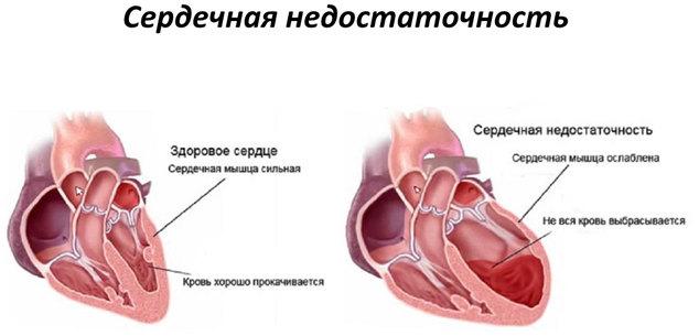kak_lechit_serdechnuyu_nedostatochnost_2