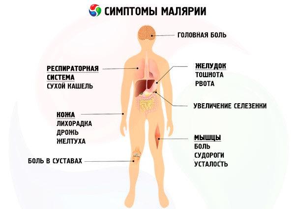 malariya-simptomi