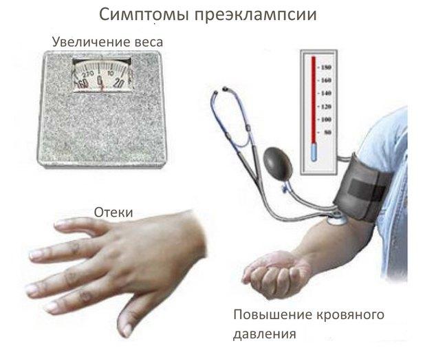 preeklampsiya_913_306
