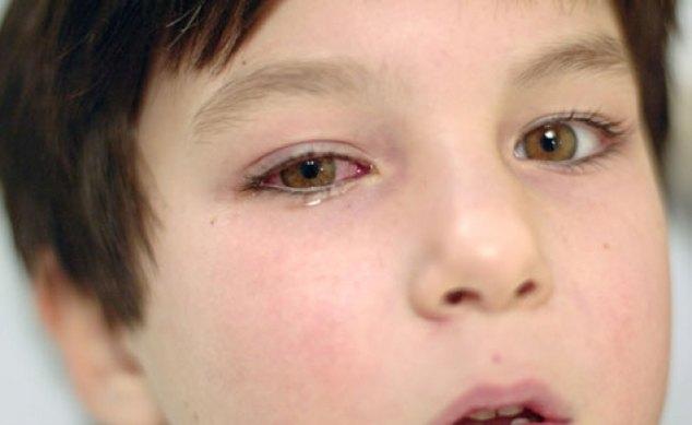 rak-setchatki-glaza-simptomi