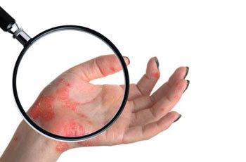 Рожа (болезнь): причины, формы, симптомы и лечение