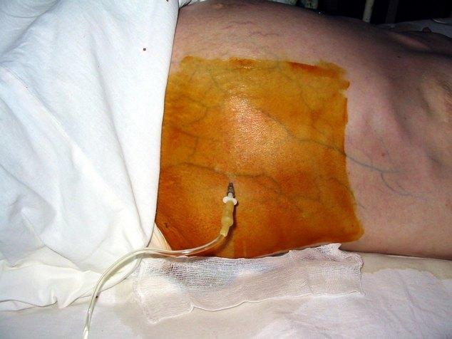 Цирроз печени и асцит