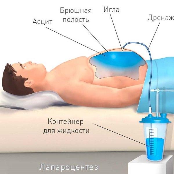 Гепатит жидкость в брюшной полости