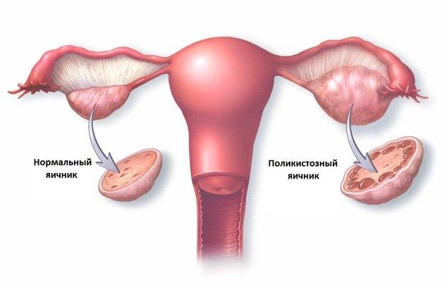 Поликистоз яичников: причины, симптомы, лечение и фото