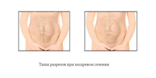 типы разрезов при кесаревом сечении