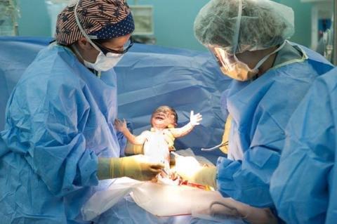 Операция кесарево сечения