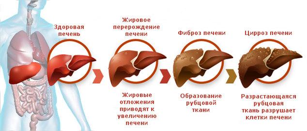 cirroz-pecheni-simptomi