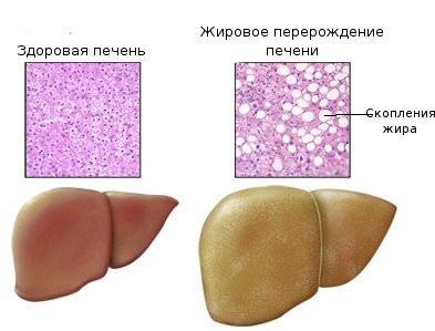 гепатоз печени