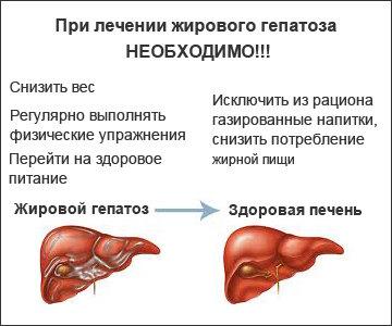 Жалобы при заболевание печени