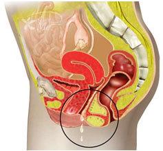 vaginit-simptomi-i-lechenie