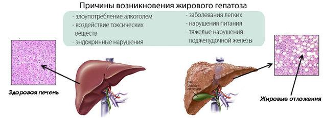 Как лечить народными средствами гепатоз жировой