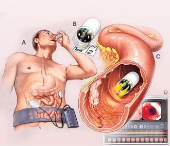 Капсульная эндоскопия: показания и метод проведения