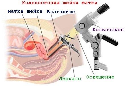kolposkopija3