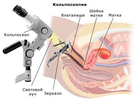 kolposkopiya-shema