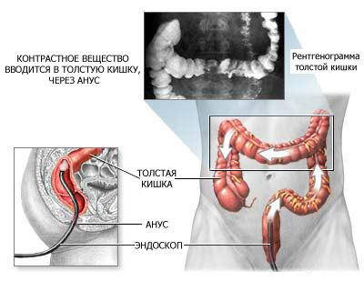 procedura-irrigoskopii