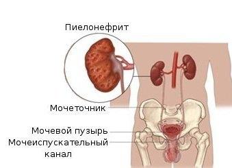 Пиелонефрит как осложнение нефроптоза