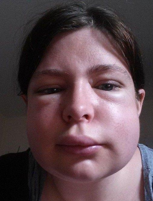 аллергия отек квинке