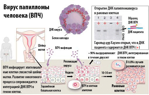 virus_papiloma_vpch_tipy