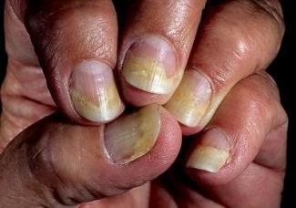 ногти при онихофагии