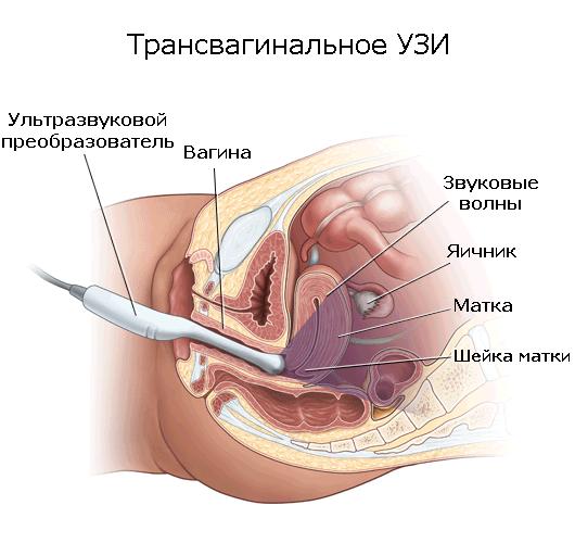 Трансвагинальное УЗИ - что это такое
