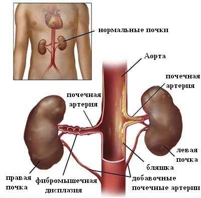 Причины почечной гипертонии