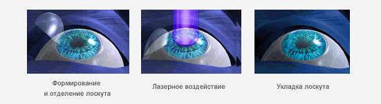 Ход лазерной коррекции зрения