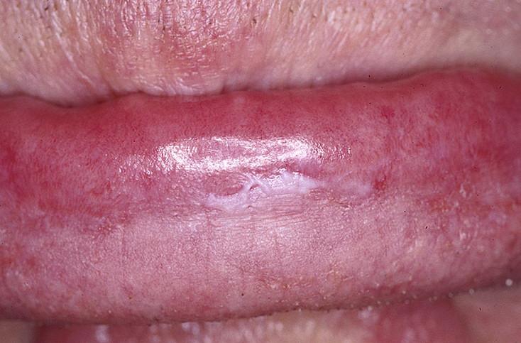Диагностика лейкоплакии полового члена и ее лечение