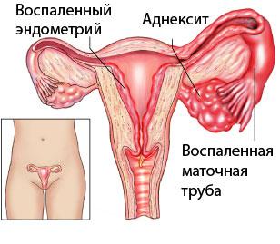 Как проявляются симптомы параметрита, какие бывают формы и способы лечения. Симптомы и признаки параметрита. Основные причины параметрита