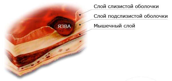 Язаенная болезнь 12-перстной кишки