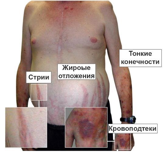 симптом болезни Иценко-Кушинга