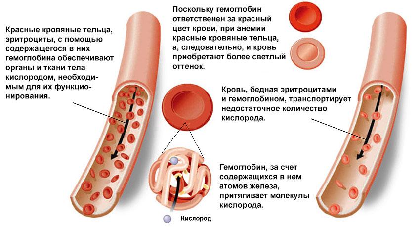 Причины низкого гемоглобина у беременных 40