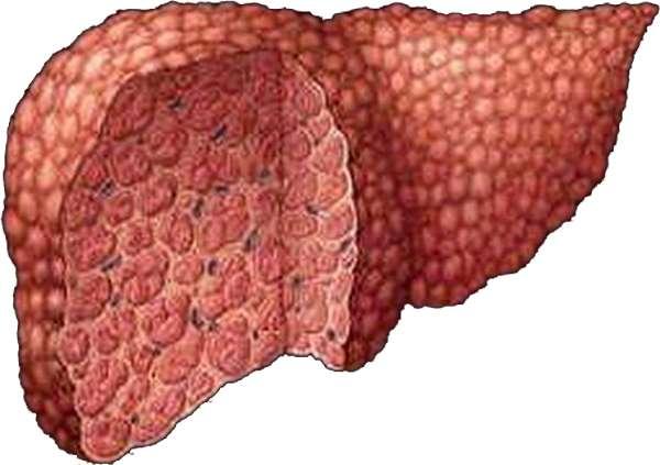Постнекротический цирроз печени