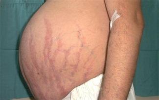 стрии при болезни Иценко-Кушинга