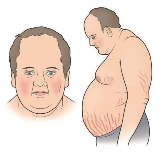 ожирение при болезни Иценко-Кушинга